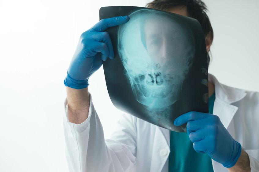 Vorsorge - Hier im Bild: Röntgen